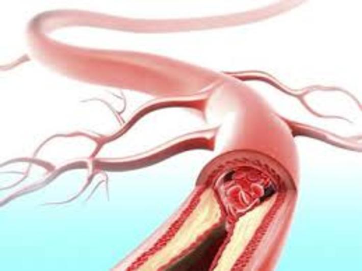 درمان گرفتگی ر گها و فشار خون درمان گرفتگی ر گها و فشار خون