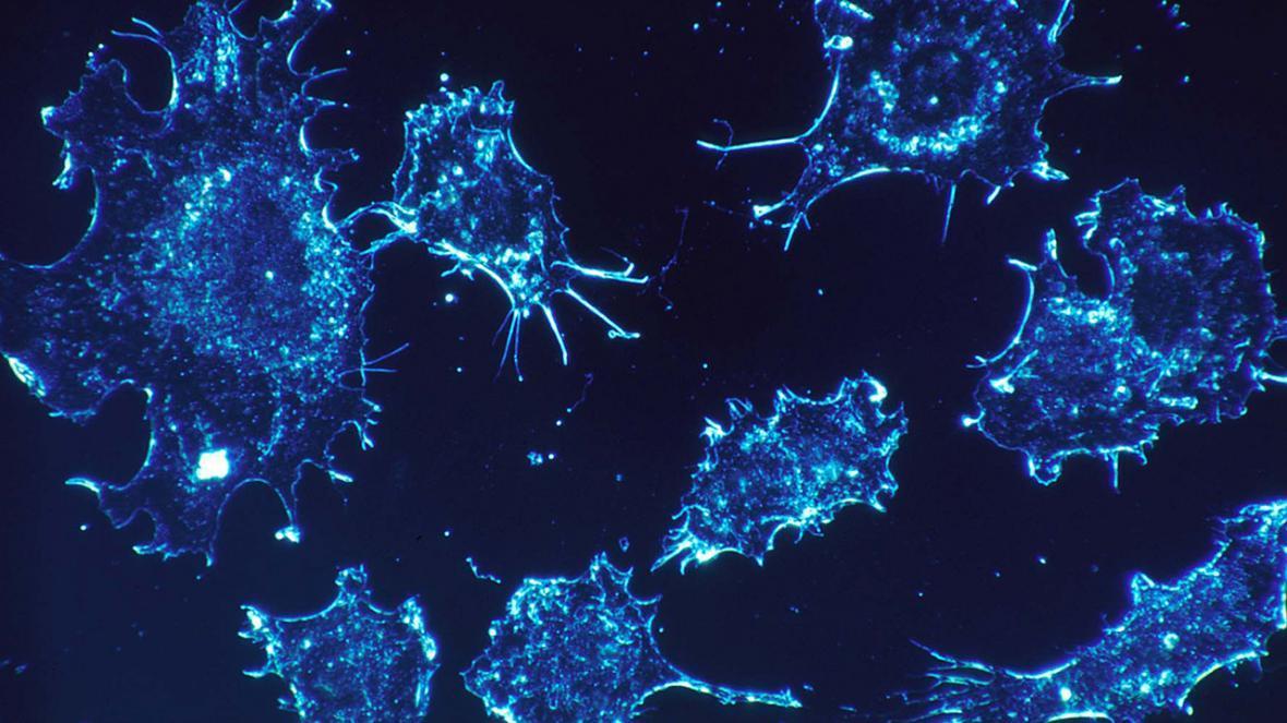 طراحی نانوذراتی که فقط سلول های سرطانی را نابود می نمایند