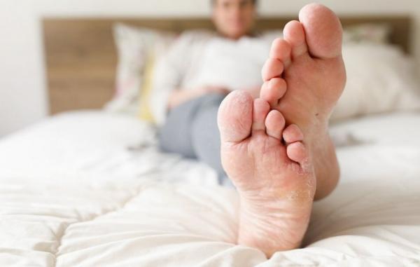 9 درمان خانگی برای عفونت های قارچی و راه های پیشگیری از آن