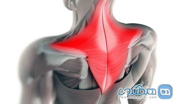 چگونه از شر گره های عضلانی گردن رها شویم؟